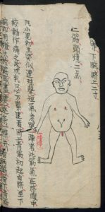 Chinese Medical Manuscripts 小兒各種驚圖 (Slg. Unschuld 8439)
